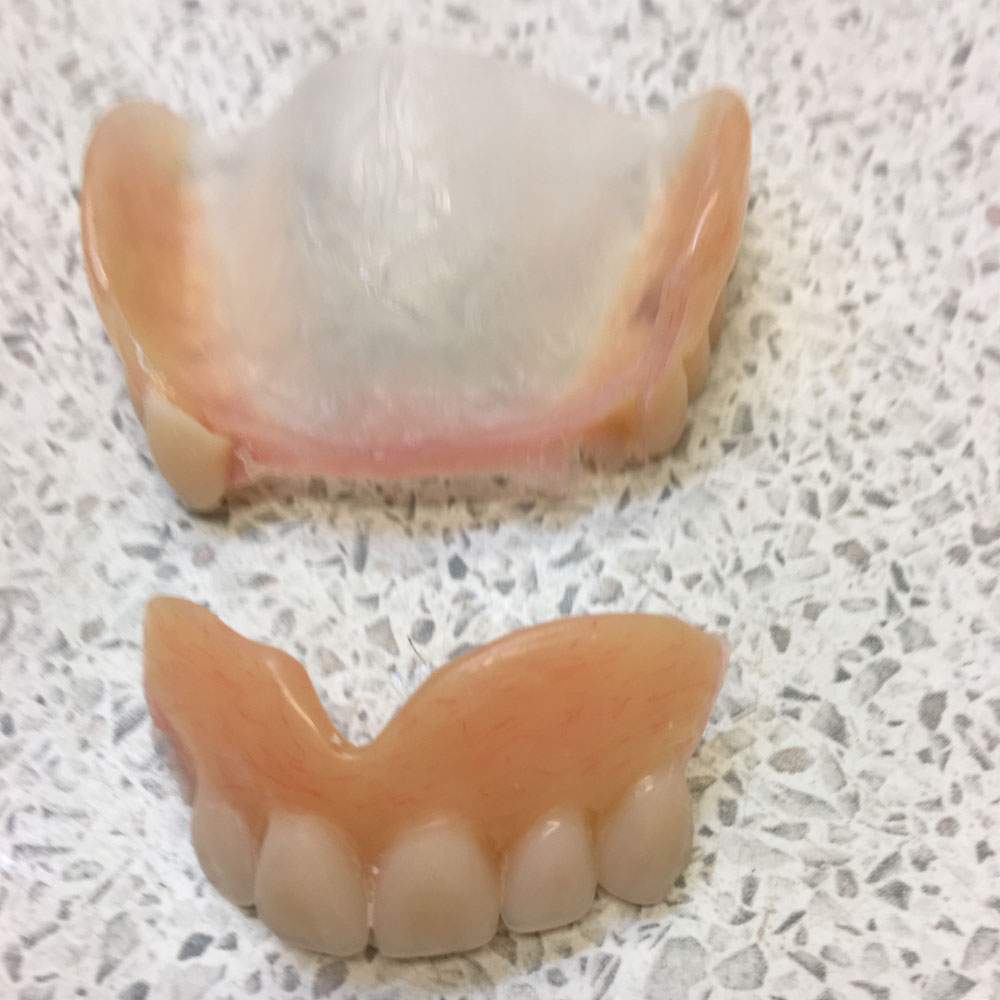 Repairs from The Denture Clinic, Canterbury